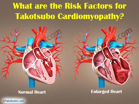 What is Takotsubo Cardiomyopathy or Broken Heart Syndrome? Description from epainassist.com. I searched for this on bing.com/images