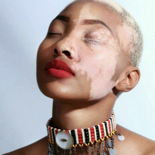Vitiligo is art. If some of you don't know, I have vitiligo. I am becoming more and more proud of my skin as the days go on