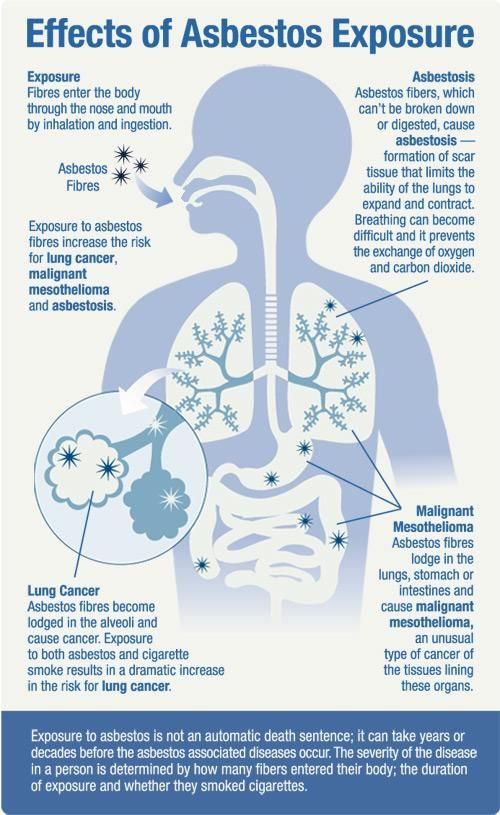 88 Best images about Mesothelioma, Asbestos and Your Health on Pinterest  Survival, Lungs and