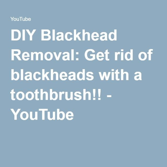 DIY Blackhead Removal: Get rid of blackheads with a