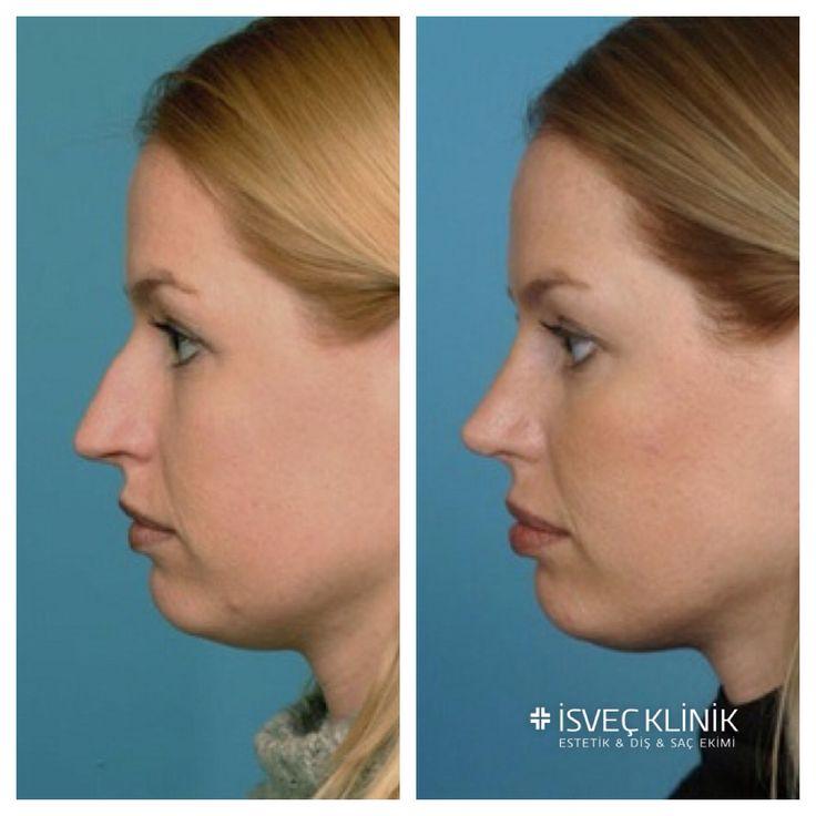 Danimarka'dan İsveç Kliniği tercih eden Maria E. nin burun estetiği sonrası muhteşem değişimi...