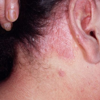 Symptoms And Treatment Of Scalp Psoriasis. #Cosmetology_K. Elise Parker