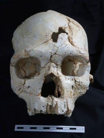 Una visione frontale del cranio 17, con due ferite d'arma contundente.