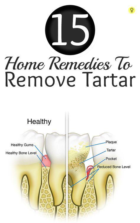 15 remédios Home surpreendentes para remover o tártaro O tártaro é um material calcificado castanho amarelado formado sobre a superfície dos dentes. Confira esses remédios caseiros eficazes para a remoção de tártaro e impedindo-o de crescer ainda mais