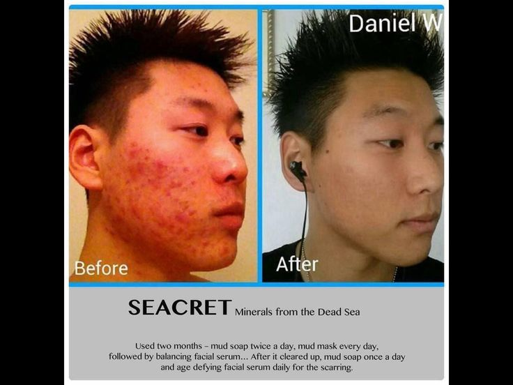 Amazing results! No steroid creams, antibiotics and any toxins absorbed in the skin. Just natural minerals and mud from the Dead Sea. https://www.seacretdirect.com/radiate/en/au/