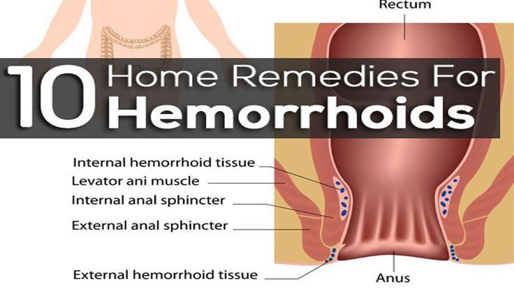 Internal Hemorrhoids | Hemorrhoid Symptoms | Home Remedies for Hemorrhoi...