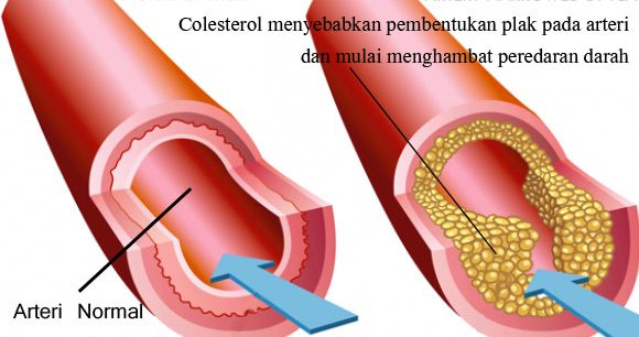 Simak info penting bagaimana kolesterol tinggi dapat menyumbat pembuluh darah arteri