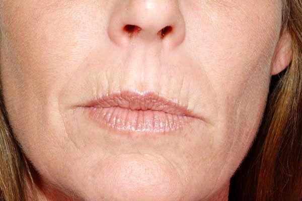 ddf0bd6912dcfb35e562af2661ee17a1 - How To Get Rid Of Deep Wrinkles On Upper Lip