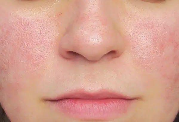 فوائد قناع ماء الورد للبشرة ذات المسام المفتوحة Aloe Vera For Face Face Skin