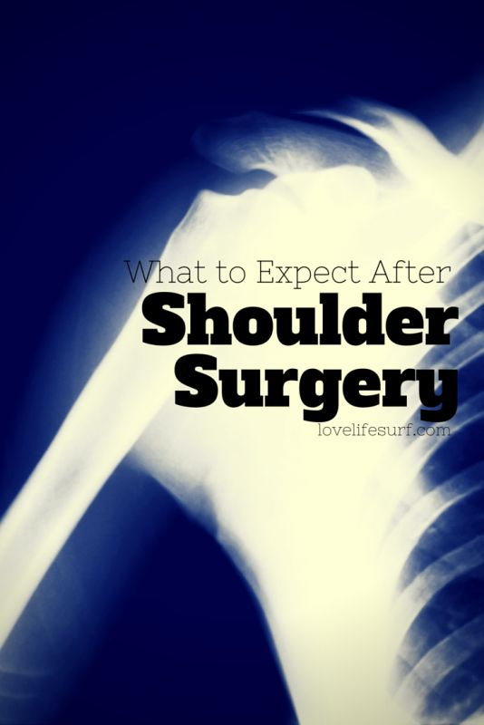 If you're having shoulder surgery - rotator cuff tear, labral tear and slap tear - here's what to expect and tips to help you recover and get through the first two weeks post-surgery.
