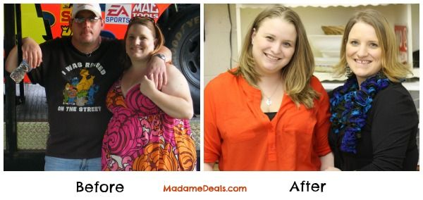 Bariatric Surgery Before and After #yourweightlossmethods