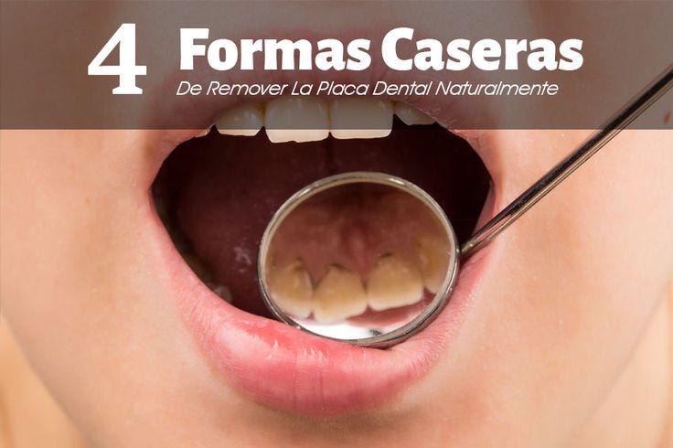 4 Formas De Eliminar La Placa Dental Rápidamente, Sin Salir De Tu Casa
