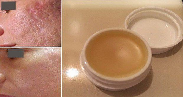 Une crème maison incroyable pour éliminer les cicatrices en moins de 2 semaines