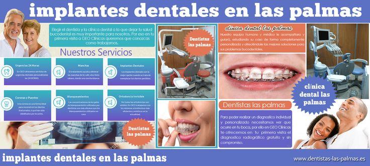 Revise este enlace http://dentistaslaspalmas.tumblr.com/ aquí mismo para más información sobre implantes dentales en las palmas. Un implantes dentales en las palmas es una raíz metálica de un diente. Es había colocado en el hueso de la mandíbula por un dentista de implantes dentales y permitido para curar en el hueso durante un período de tiempo hasta que la unión hueso-implante es lo suficientemente fuerte como para soportar una prótesis dental.