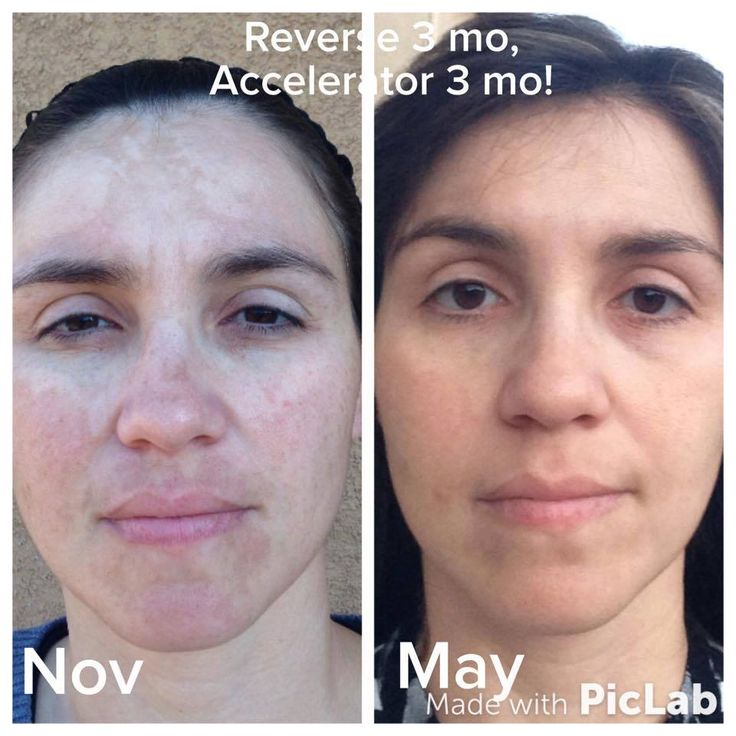 Image result for Find out How to Get Rid of Melasma