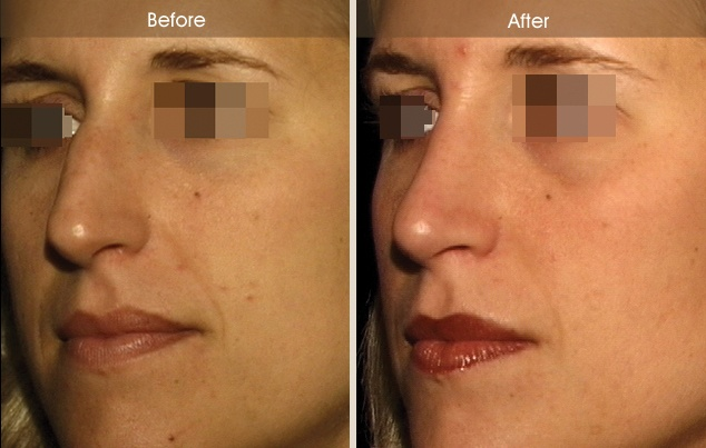 Pin On Before And After Rhinoplasty