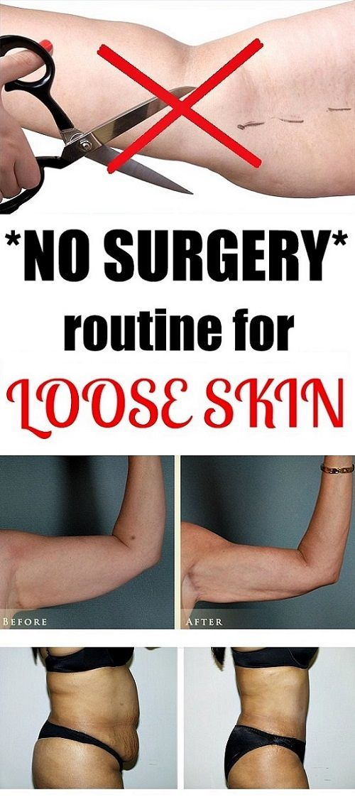 Routine for loose Skin after weight loss - CURES AND TIPS