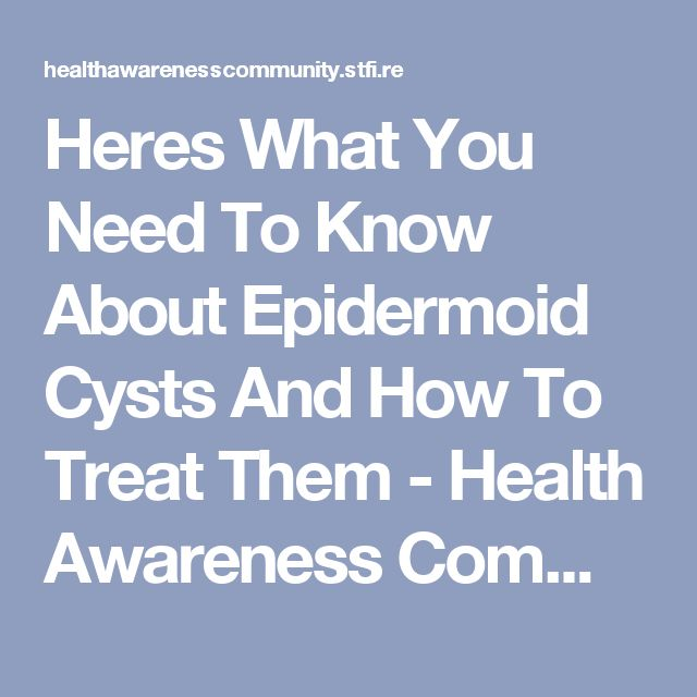Heres What You Need To Know About Epidermoid Cysts And How To Treat Them - Health Awareness Community