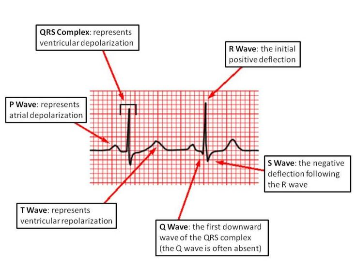 de01f1cd8cc81233a84c3ba8d1b43809 waves ecg 115 best ecg ekg images on pinterest nursing schools, cardiac ecg diagram at aneh.co