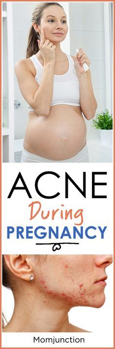 The overworked hormones can lead to an acne breakout especially if you had experienced the problem before you were pregnant. In some cases acne can become severe during pregnancy.