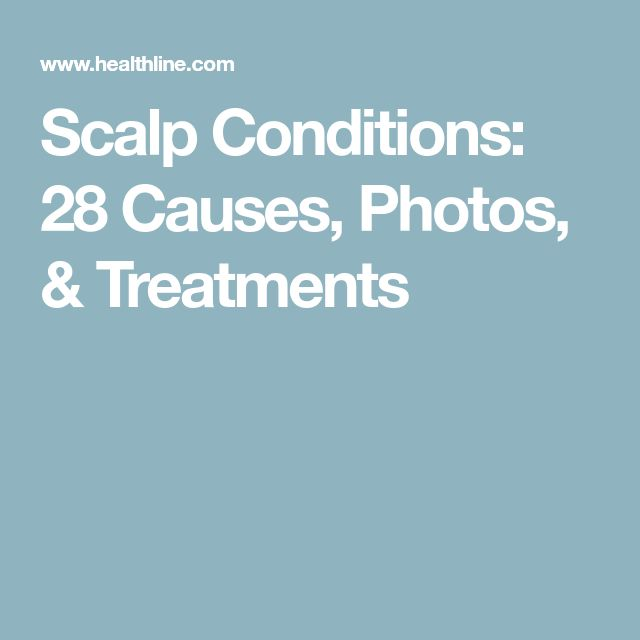 Scalp Conditions: 28 Causes, Photos, & Treatments