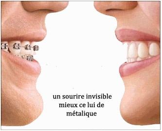 Un sourire invisible mieux celui métallique