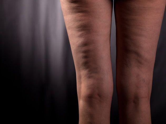 Mitos y verdades sobre la celulitis que te ayudarán a combatirla