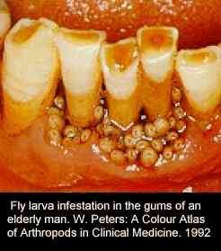 Medical conditions: Fly larvae in a man's gums - The Weird Picture Archive