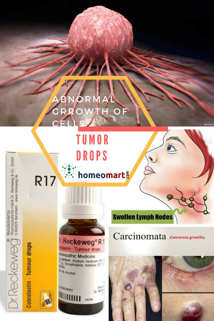 Dr.Reckeweg homeopathy R17 drops indicated for all tumors, malignant or benign, carcinomata. Suppresses cancerous growths and regenerates diseased tissues. It acts on abnormal growths in epithelial tissues, stops formation of scales & warts. R17 addresses Inflammatory and tropic rashes, glandular swellings of cancerous nature, malignant lumps in the breast that may turn to tumours, stomach ulcers that may show signs of cancer. R17 is a supplementary medicine for malignancy