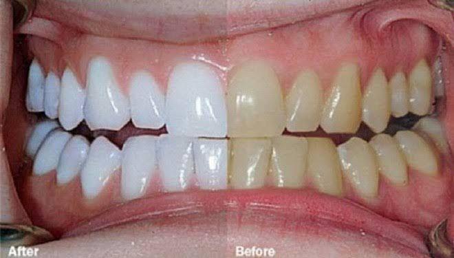 les 25 meilleures id es de la cat gorie dents sur pinterest rem des pour dents blanches dents. Black Bedroom Furniture Sets. Home Design Ideas