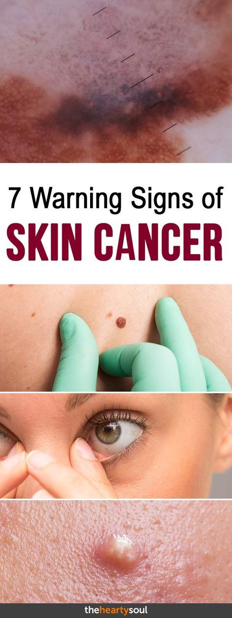 characteristics and ways of avoiding skin cancer Easy ways to protect yourself from uv rays and reduce your risk of skin cancer skip directly to search skip directly to a to z list skip directly to navigation skip directly to page options skip directly to site content.
