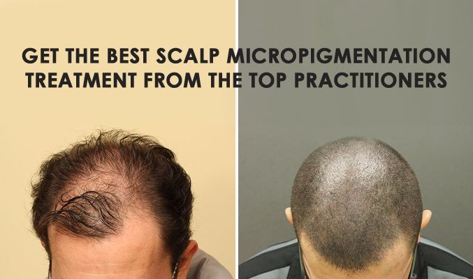 There has been a long ensuing debate between which hair replacement procedure is better- hair transplant or scalp micropigmentation. Look at the aspects closely and finally decide who the real winner is.