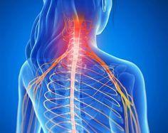 La hernie discale cervicale : symptômes et traitements