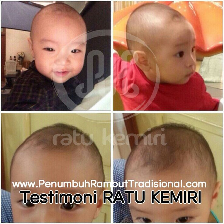 Jual obat penyubur rambut bayi alami. SMS/WA 0878 2338 1610, BBM 2BEB4CE4. Ratu Kemiri original dan berkhasiat.