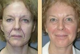 Accomplish Your Very Own Biological Facelift By Performing Simple Face Toning Regimens