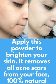 3 months challenge, Apply this powder to brighten your skin. It removes all acne scars from your face, 100% natural