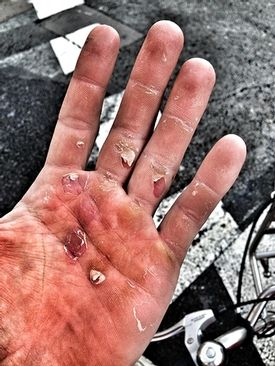 Rowing Blisters 101
