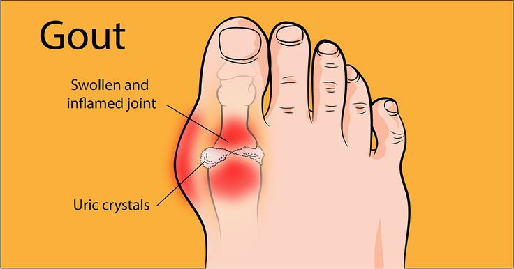 It all starts with a little bit of swelling in the wrist or ankles, hands, or feet. Sometimes it comes on strong—other times, it moves in slowly, building to a painful, debilitating swell you cannot deny is a gout attack. Maybe foods high in fat or alcohol are to blame. Whatever the case may be, …