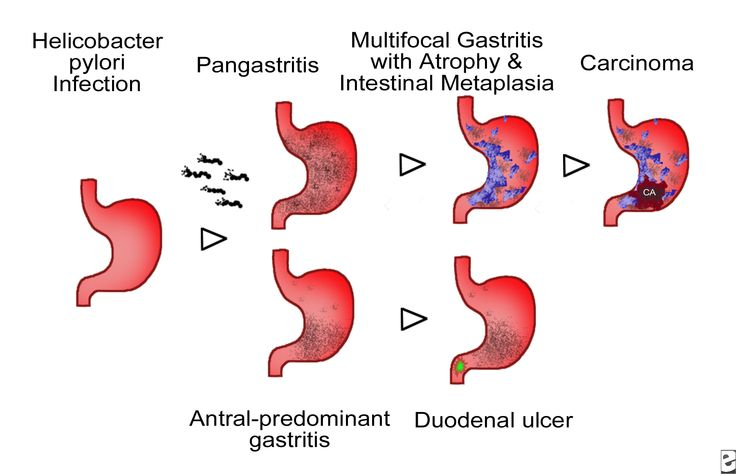 HP Gastritis