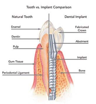 Dental Implants act as artificial tooth root.