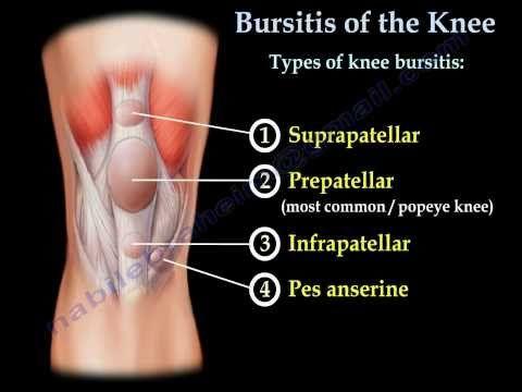 Prepatellar Bursitis of the Knee - William Seeds, MD - YouTube
