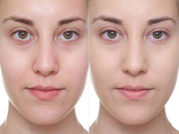 Bare skin (left) / Wearing only IT Cosmetics Bye Bye Redness (right)