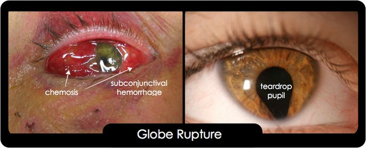 This patient presents with a globe rupture and should be ...