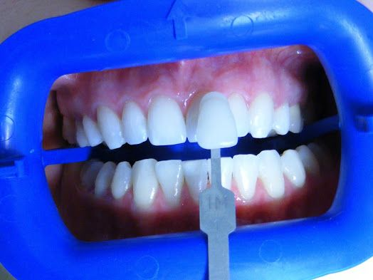 Denti più bianchi con sbiancamento dentale in Romannia ! Vi invitiamo a vedere di più qui e contattaci subito : http://www.intermedline.com/dental-clinics-romania/ #clinicadentale #clinicadentaleinRomania #clinicaodontoiatrica #clinicaodontoiatricainRomania #sbiancamentodentale #sbiancamentodentaleinRomania #sbiancamentodidenti #sbiancamentodidentiinRomania #dentista #dentistainRomania #turismodentale #turismodentaleinRomania