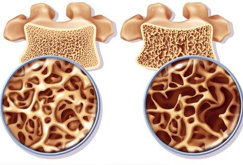 L'ostéoporose est une maladie qui affecte les os, les rendant plus fragiles et plus vulnérables aux fractures et aux fêlures.