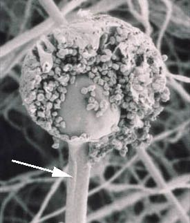 sporangiophore: sporangium-bearing body of a fungus (SEM of Rhizopus stolonifer)