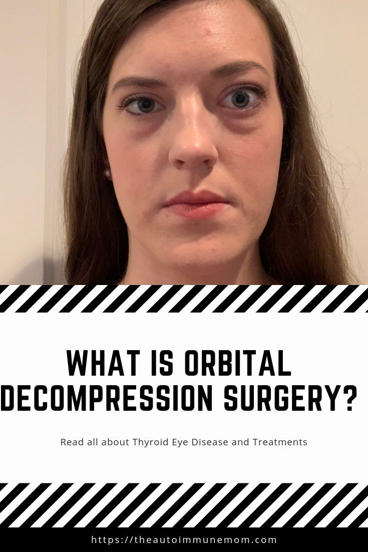 What Is Orbital Decompression Surgery The Autoimmune Mom
