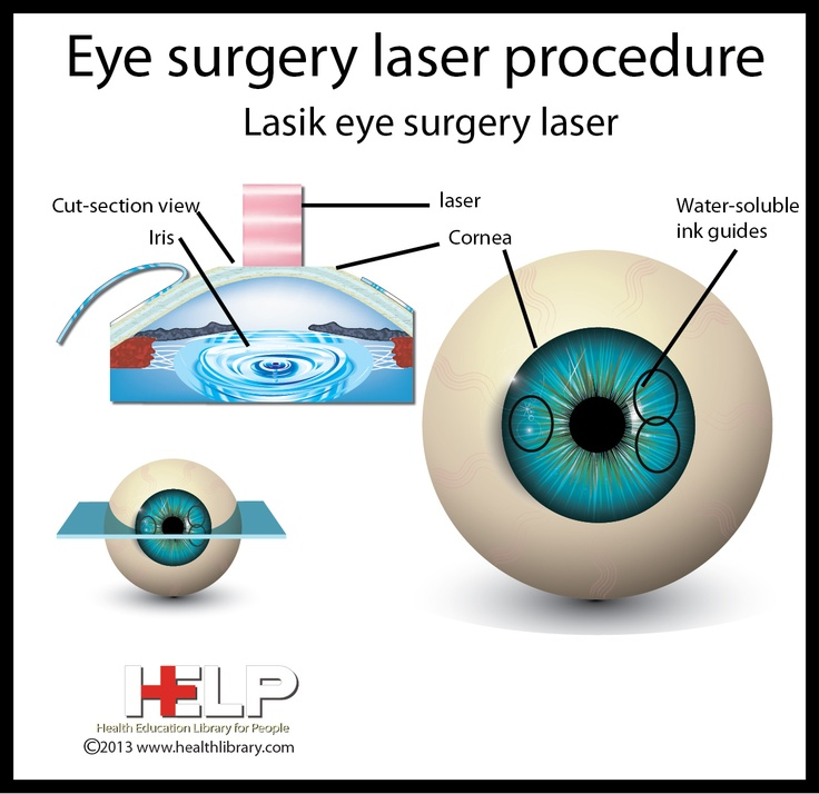 eyes eye part laser - photo #24