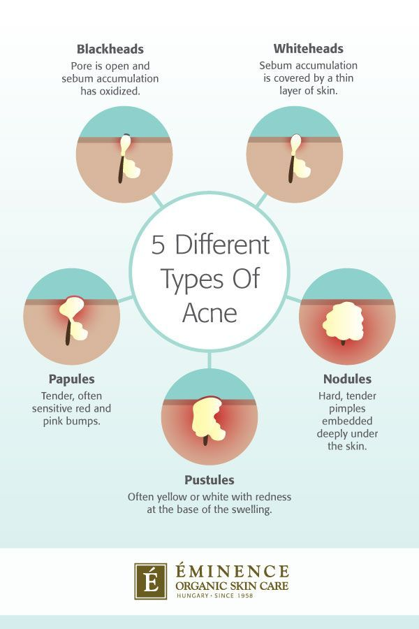 Types Of Acne The Differences Between Your Bumps And Blemishes Types Of Acne Different Types Of Acne Eminence Organic Skin Care
