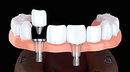 Here's What New Dental Implants Should Cost You - Pricing